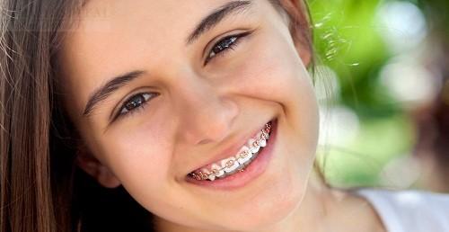 Phương Pháp Vệ Sinh Răng Miệng Sau Khi Niềng Răng