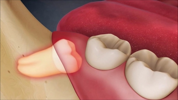Xử trí thế nào khi răng khôn 'mọc dại'