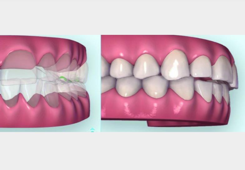 Kết hợp điều trị bằng hỗ trợ CAD/CAM cho một nụ cười mới trẻ đẹp