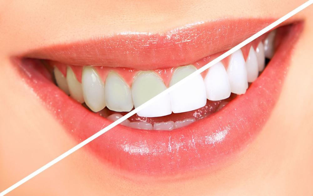 Làm thế nào để tẩy trắng răng an toàn và hiệu quả?