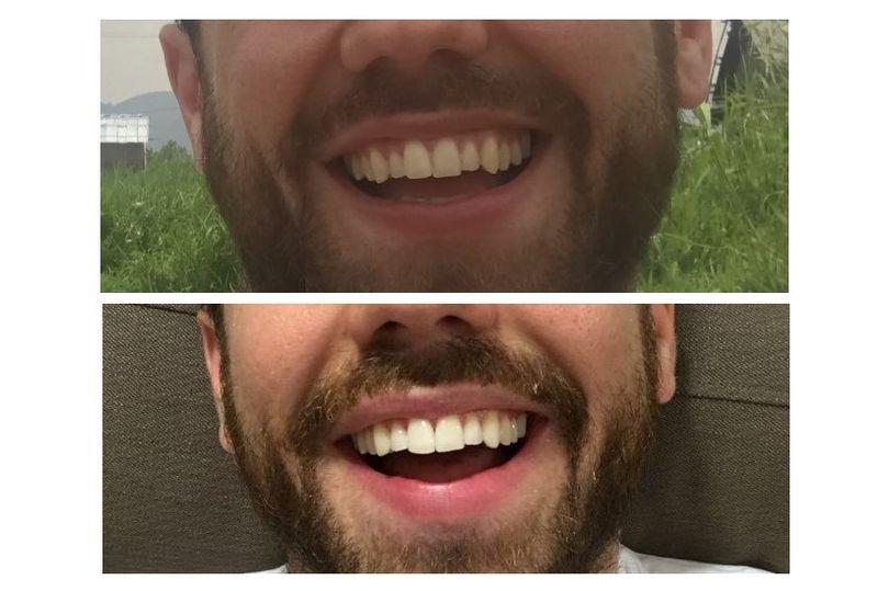 Review chỉnh nha Invisalign (máng năng trong suốt): Sở hữu nụ cười rạng rỡ mà không cần đeo mắc cài kim loại