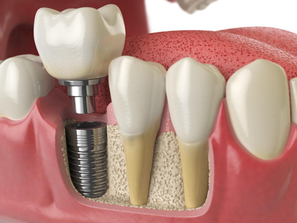 Ưu điểm và nhược điểm của Dental Implants (cấy ghép nha khoa)